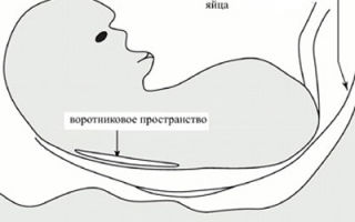 Толщина воротникового пространства у плода: диагностика, норма и отклонения