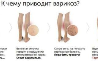 Варикозное расширение вен на ногах: стадии, лечение и прогноз
