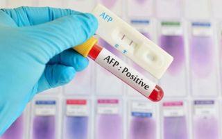 Анализ крови на альфа-фетопротеин: назначение, норма и отклонение показателя