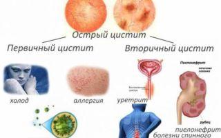 Оранжевая моча — причины, диагностика и возможные заболевания