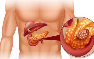 Диастаза крови — значение фермента, диагностика и расшифровка анализа