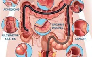 Колоноскопия кишечника — что это такое, назначение, подготовка, процедура обследования и возможные противопоказания