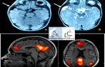Мрт головного мозга — подготовка, процедура, возможные заболевания и противопоказания к обследованию