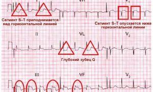 Электрокардиограмма сердца — расшифровка: нормы показателей и возможные заболевания сердца