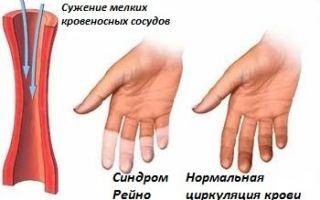 Анализ на криоглобулины —  на что указывает криоглобулинемия