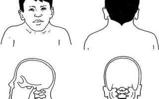 Синдром клиппеля-фейля: признаки, причины возникновения и возможные методы лечения патологии