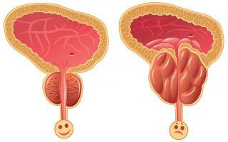 Заболевания мочевыделительной системы: виды, признаки, диагностика и лечение