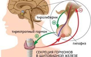 Недостаток гормона щитовидной железы: причины и лечение гипотиреоза