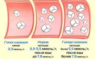 Какой показатель сахара в крови считается нормой и причины отклонения от нормы