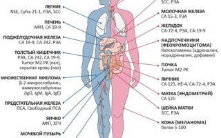 Показатели общего и биохимического анализа крови при онкологии: подготовка и расшифровка результатов