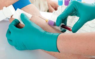 Биохимия крови для печени: процедура и расшифровка основных показателей