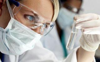 Как расшифровать анализ на токсоплазмоз: основные показатели