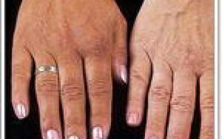 Первичный (врожденный) гемохроматоз — что нужно знать родителям