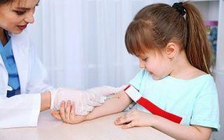Alt анализ крови: что это, норма и отклонение от нормы