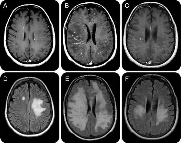 Диагностика рассеянного склероза, анализы, электрофорез