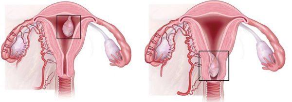 Железистый полип эндометрия: признаки новообразования и его лечение