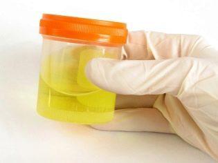 Содержание сахара в моче при беременности: норма и причины возникновения гестационного диабета
