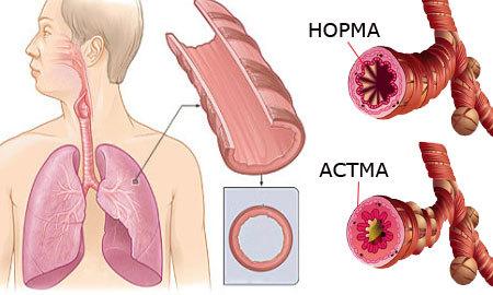 Анализы при бронхиальной астме