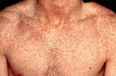 Вирусный артрит: симптомы, особенности течения, диагностика и лечение
