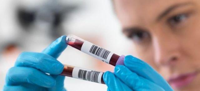 Расшифровка анализа ФСГ: норма, причины повышение и понижение уровня гормона