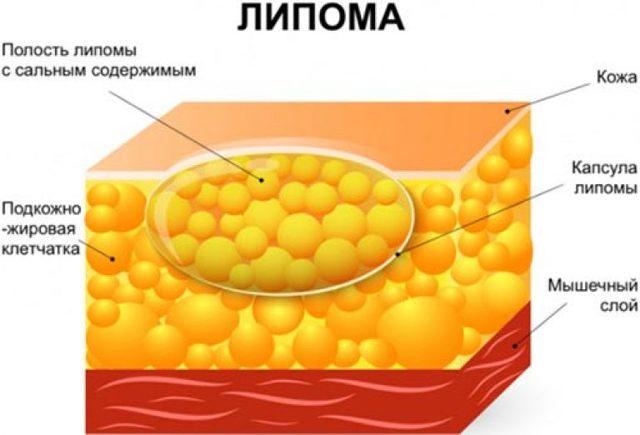 Жировик в молочной железе: причины, признаки, диагностика, лечение и удаление липомы