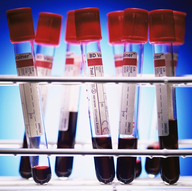 Биохимический анализ крови у детей: подготовка и расшифровка основных показателей