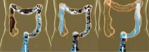 Мониторинг кишечника: показания, процедура и противопоказания