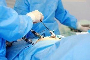 Показания к удалению желчного пузыря, подготовка, процедура и период восстановления
