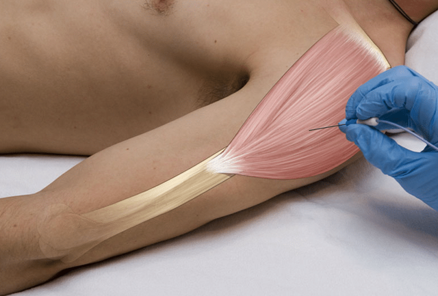 ЭМГ нижних конечностей: подготовка, процедура и возможные результаты