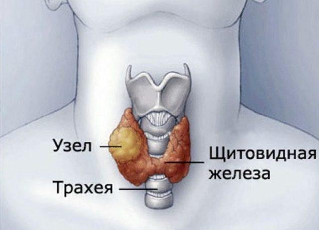 Как уменьшить узлы щитовидной железы: самые эффективные средства