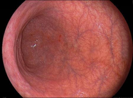Почему возникает хронический субатрофический гастрит и как лечить заболевание?