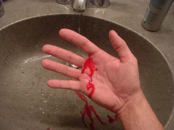 Фазы свертывания крови и причины нарушения свертываемости