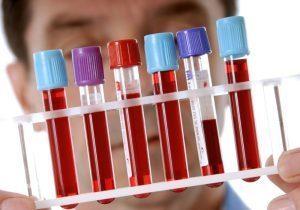Биохимический анализ крови – что входит в исследование и как к нему подготовиться?