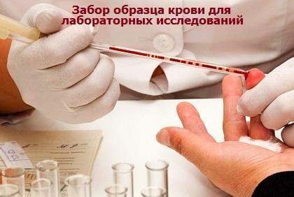 Расшифровка анализа крови wbc: норма лейкоцитов и причины отклонения