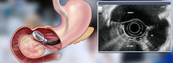 Что показывает УЗИ брюшной полости и методика проведения исследования