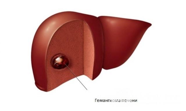 Гемангиома печени на УЗИ: особенности диагностики, виды, признаки и лечение болезни