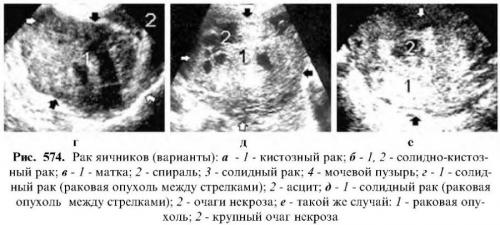 УЗИ яичников: назначение исследования, норма и возможные отклонения