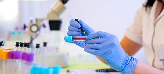 Сдача крови на сахар: виды анализов, подготовка и норма показателя по возрасту