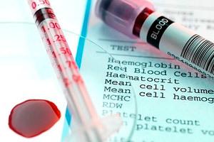 Гемоглобин повышен: причины, признаки и методы нормализации белка в крови