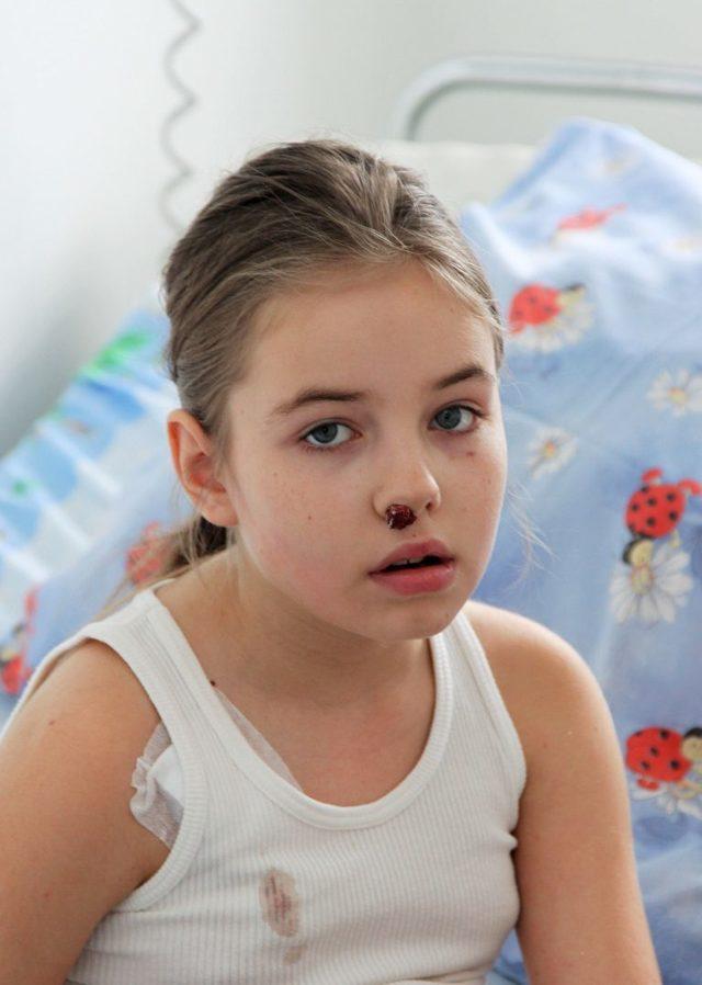 Идиопатическая апластическая анемия: симптомы, лечение и прогноз