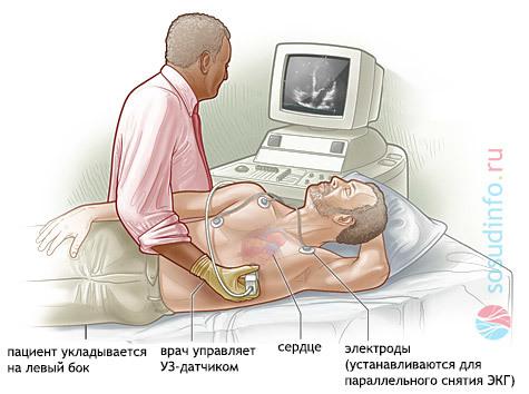 УЗИ сердца: назначение, процедура, нормальные показатели и возможные заболевания