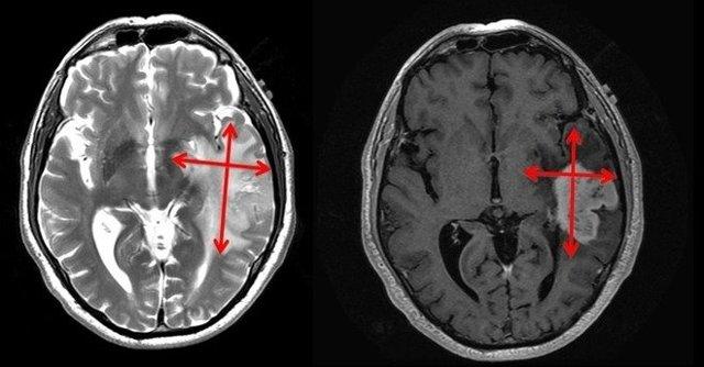Относительное и абсолютное противопоказания МРТ головного мозга