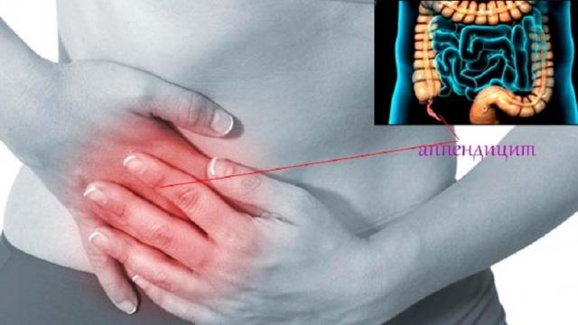 Симптомы Кохера-Волковича при остром аппендиците и хирургическое удаление аппендикса