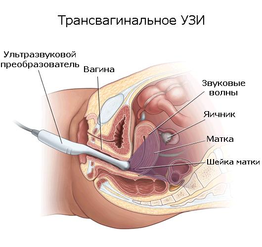 Признаки эндометриоидной кисты яичника, методы лечения и удаления новообразования
