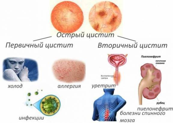 Оранжевая моча - причины, диагностика и возможные заболевания