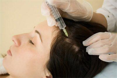 Щитовидная железа и выпадение волос: почему это происходит и что делать?