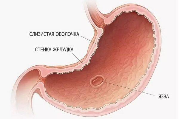 Основные причины и симптомы язвы желудка, фото и методика лечения болезни