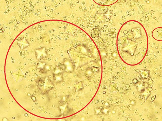 Причины появления соли в моче у ребенка, медикаментозное лечение,  правильное питание и возможные последствия