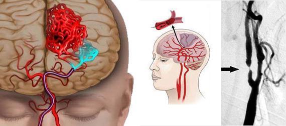 Ишемическая болезнь головного мозга: симптомы, стадии и опасность патологии