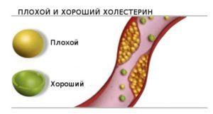Значение и норма триглицеридов в анализе крови